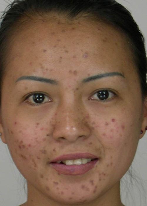 如何运用PS来去除图片人脸上的痘痘